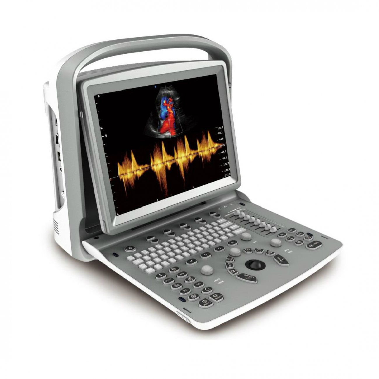 Chison Sonotouch 50 (ECO6)